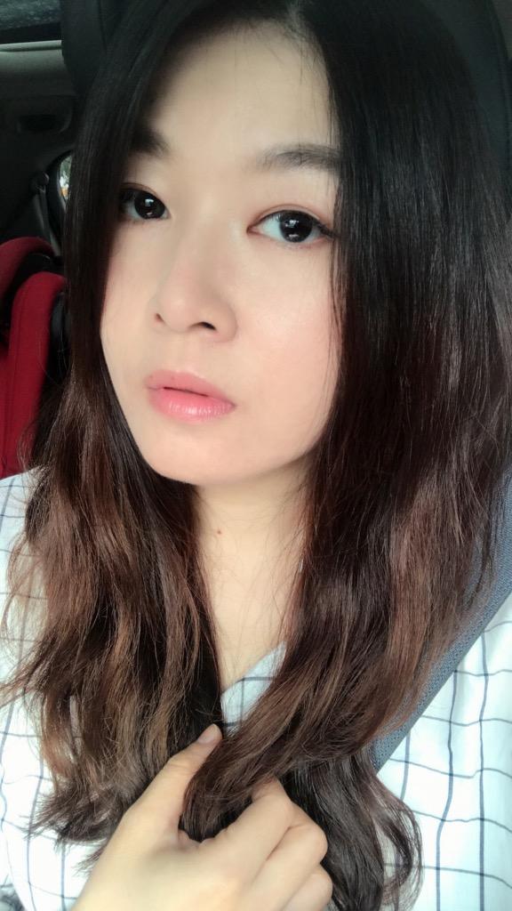【醫美】法令紋打玻尿酸心得分享(佳思優整形醫美診所)